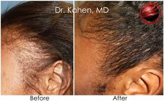 With the advancement of medical science you can now see the results through your own eyes. Dr. Kahen at Beverly Hills Hair Restoration Clinic uses the NO PAIN technique to make you enjoy your prp before and after pictures. For more info, visit our website.
