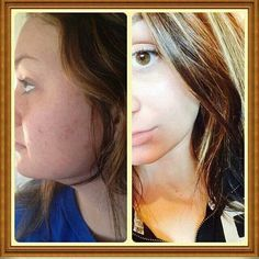 Clears cystic acne with no chemicals or 5 step skincare program! Probita by Visi! All natural. These results were achieved with 3-4 Probita a day. Order yours for clearer healthy skin at www.haileyanderic.govisi.com