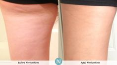 Megan's Real Results with #NeriumFirm are incredible!! Want to get your own Nerium Firm results? Click the pin to learn more!! www.advancedhealth.nerium.com ~ http://www.advancedhealth.arealbreakthrough.com