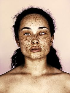 mrelbank:   #1 Taii from Premier Models London As part of my Freckles series.. #mrelbank