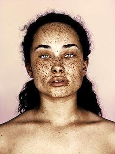 Freckles ~