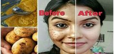 Share This: You can get rid of acne justby using this effective and simple paste, which is commonly used in Russian folk medicine. Recipe Ingredients: 1 tsp ground cinnamon 3 tbsp pure honey Preparation...