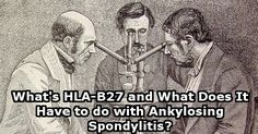What's HLA-B27 and What Does It Have to do with Ankylosing Spondylitis?