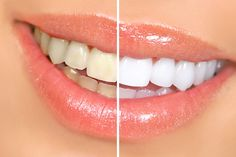 So, how to whiten teeth at home...? There are many professional treatments available which are very expensive. Try these natural remedies with...