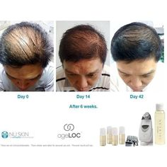 To help ensure a lifetime of healthy looking hair, Nutriol® Hair Fitness Treatment enhances the vitality of your hair and scalp with patented technology. Nutriol features Tricalgoxyl®, a clinically proven seaweed derivative developed by a European laboratory. Formulated to remineralise the scalp and hydrate the hair, Nutriol helps you hair look and feel abundant. By helping revitalise the scalp for maximum hair vitality, Nutriol gives you the hair care technology to fight back!