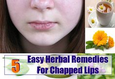 Health Care A to Z - https://www.healthcareatoz.com/5-easy-herbal-remedies-for-chapped-lips/