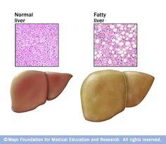 Fatty liver treatment usіng natural remedies