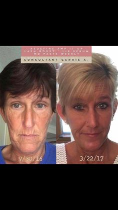 Consultant Gerrie. Non retouched photos. Rodan and Fields