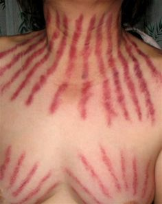 Coining marks left after the scraping treatment of 'Gua Sha'