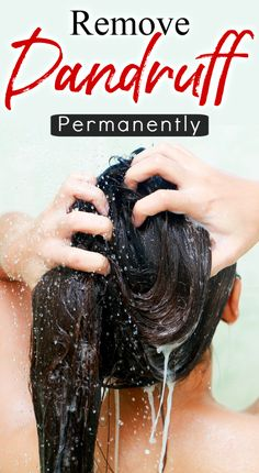 Remove Dandruff Permanently In 1 Day – Dandruff Treatment At Home Natural Hair Regrowth, Natural Hair Tips, Natural Hair Styles, Beauty Secrets, Beauty Hacks, Beauty Products, Dandruff Solutions, Drugstore Shampoo