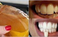 Dite addio ai denti gialli con questa meravigliosa ricetta fatta in casa! Funziona così bene che vi farà vivere sempre sorridente! •
