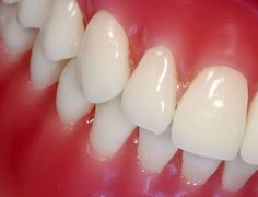 Save Your Gums: 6 Natural Ways to Fight Gum Diseases
