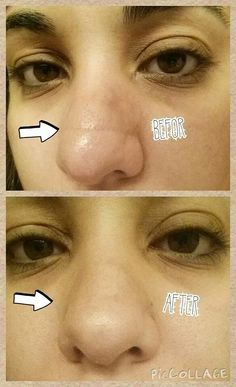 Wow, even works on the nose! One application of Acute Care!
