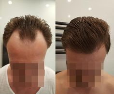 FUE Hair Transplant Result 3055 Grafts HLC: https://www.youtube.com/watch?v=9WwjbccaBnc