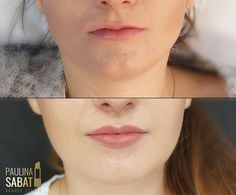 "Paula Sabat - Beauty Studio on Instagram: ""Beauty lips 💋 lips injection #beautylips #lips #sexylips #hyaluronsäurebehandlung #kwashialuronowy #hialuronicacid #dermafiller #skinfiller…"" Lip Injections, Beauty Studio, Lips, Blog, Instagram, Blogging"