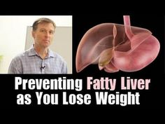 Preventing a Fatty Liver as You Lose Weight