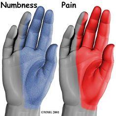 Neuropathy of the hands | Neuropathy Symptoms