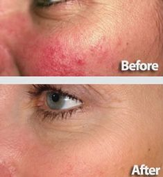 How to Get Rid of Rosacea Effectively Top Treatments and Products CAA Anti Aging Treatments, Skin Care Treatments, Ocular Rosacea, Acne Rosacea, How To Treat Rosacea, Rosacea Remedies, Home Remedies, Health, Hair Makeup