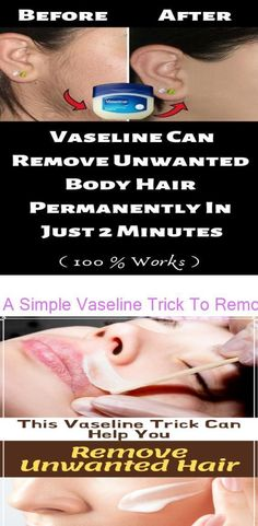 A Simple Vaseline Trick To Remove Unwanted Hair On The Body This Vaseline Trick Can Help You Remove Unwanted Hair | BoboBrid #BodyHairRemovalDevices #HairRemoval #IngrownHairRemoval