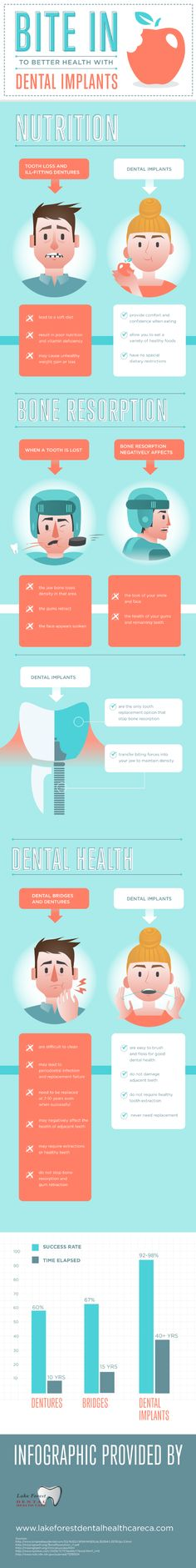 This implantology infographic from a dentist in Lake Forest shows you why dental implants are a great option.