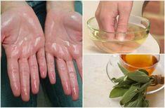 手掌多汗症、または異常な量の手汗は、あまり心地のよくない疾患です。この疾患はそう珍しくなく、ほとんどが神経が過剰に刺激される事が原因で起きます。 この状態は、汗腺の変化によって起こります。不安な状況であったり、ストレスが掛かっている状態のときに汗腺から汗が発生します。