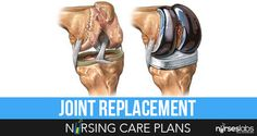 5 Total Joint (Knee, Hip) Replacement Nursing Care Plans | Nurseslabs