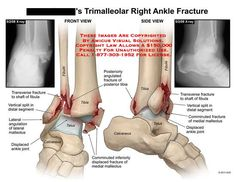 137 Best Trimalleolar Fracture Images Healing Surgery
