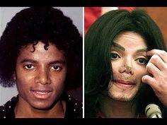Жертвы пластической хирургии. До и после. Ужассс