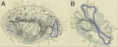 Researchers Rediscover and Map 'Lost' Brain Structure Neuroscience News September Two drawings of the VOF are from a post-mortem dissection. The right image was created by French anatomist Joseph Jules Déjerine in Credit: Kevin Weiner. Brain Diagram, Brain Mapping, Lost Highway, Brain Structure, Neurons, Beautiful Mind, Neuroscience, Nervous System, Textbook