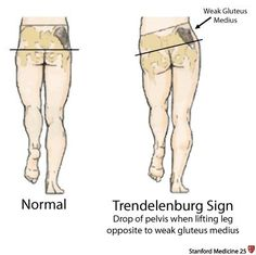 In the late stages of muscular dystrophy, fat and connective tissue often replace muscle fibers. Chronic Lower Back Pain, Trigger Point Therapy, Gluteus Medius, Muscular Dystrophies, Muscle Anatomy, Anatomy And Physiology, Massage Therapy, Physical Therapy, Physics