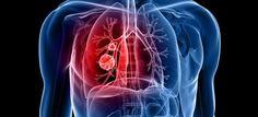 MÉTASTASES : LES SYMPTÔMES  Les métastases correspondent au développement de cellules cancéreuses à distance de la tumeur primitive. Elles apparaissent plus tardivement mais peuvent être présentes dans tout l'organisme. Foie, os, cerveau, poumon... Voici les localisations préférentielles, les symptômes caractéristiques et les cancers concernés.  Foie : une pesanteur et un volume plus important