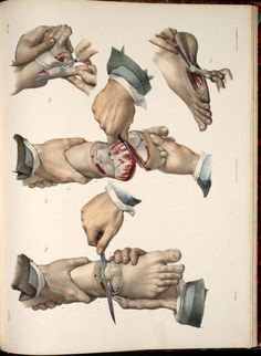 "Illustration of an amputation of the foot & toe, by Nicolas Henri Jacob (1782-1871). In Marc Jean Bourgery. ""Traité complet de l'anatomie de l'homme"" (Paris, 1831-54).Fisher Rare Book Library, University of Toronto"