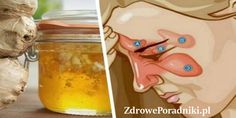 zapalenia zatok Health Diet, Health Fitness, Lunch Box, Drink, Nice, Beauty, Food, Therapy, How To Make