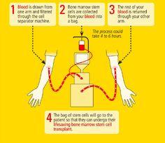 | Bone marrow donation, how it works