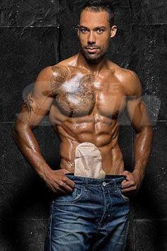 Bodybuilder Struck With Bowel Disease Now Models Colostomy Bag