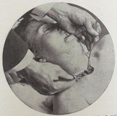 """From Carl Lewis Barnes-""""The art and science of #embalming 1898"""""""