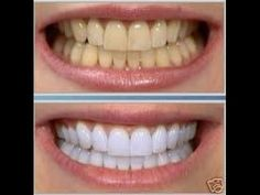 Top Oral Health Advice To Keep Your Teeth Healthy. The smile on your face is what people first notice about you, so caring for your teeth is very important. Unluckily, picking the best dental care tips migh Teeth Whitening System, Natural Teeth Whitening, Smile Makeover, Brush My Teeth, Teeth Bleaching, Cosmetic Dentistry, White Teeth, Oral Hygiene, Oral Health