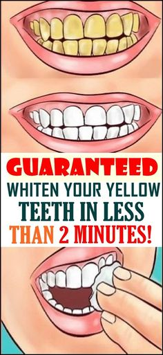 Whiten Your Yellow Teeth In Less Than 2 Minutes! Whiten Your Yellow Teeth In Less Than 2 Minutes! Whiten Your Yellow Teeth In Less Than 2 Minutes! Health Tips For Women, Health And Beauty Tips, Health Advice, Women Health, Teeth Whitening Remedies, Natural Teeth Whitening, Teath Whitening, White Teeth Remedies, Teeth Health