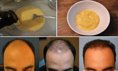 He Mixed Banana And Beer And Applied It To His Hair The Results Are Shocking After 7 Days This Happened