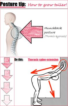 Having a Hunchback posture (also known as having excessive thoracic kyphosis) ca… – Fitness Ideas Kyphosis Exercises, Scoliosis Exercises, Back Pain Exercises, Exercises For Good Posture, Yoga Fitness, Fitness Workouts, At Home Workouts, Lower Ab Workouts, Gym Workout For Beginners