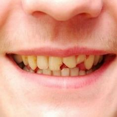How Chipped tooth is fixed by Dentist Teeth Health, Oral Health, Dental Health, Medical Dental, Dental Hygiene, Dental Care, Chipped Tooth Repair, Cracked Tooth, Dental Emergency