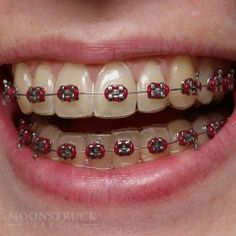 Anwen - Fake Braces Teeth - Red Braces Color