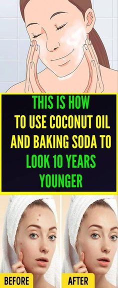 Look after your skin using these tips. Skincare for you.Is a great time to take care of your skin and keep feeling and looking healthy. Have a look at these must have skincare hacks. Natural Face Cleanser, Baking Soda Shampoo, Younger Skin, Coconut Oil For Skin, Remove Acne, Sagging Skin, Skin Problems, Acne Scars, Skin Care Tips