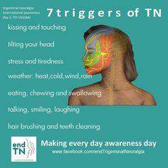 Tiredness Remedies Some Trigeminal Neuralgia Triggers Trigeminal Neuralgia Treatment, Atypical Trigeminal Neuralgia, Occipital Neuralgia, Chronic Fatigue, Chronic Pain, Fibromyalgia, Chronic Illness, Jaw Pain, Cluster Headaches