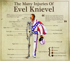 Evel Knievel set many world records. One you may not know about, though, is that he broke more bones in his lifetime than any other human being in recorded history. Check him and his injuries out here! Evil Kenevil, Forget, American Legend, American History, World Of Sports, World Records, Good Ol, Stunts, Motorcycles
