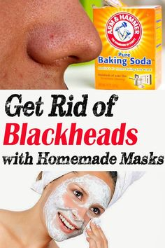 Get Rid of Blackheads with Homemade Masks - Crazy Beauty Tricks