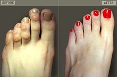 What can I expect with hammertoe surgery?