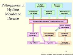 Infant respiratory distress syndrome (IRDS), also called neonatal respiratory distress syndrome, respiratory distress syndrome of newborn, or increasingly surfactant deficiency disorder (SDD), and previously called hyaline membrane disease (HMD), is a syndrome in premature infants caused by developmental insufficiency of surfactant production and structural immaturity in the lungs.