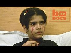 Butterfly Boy's Skin Falls Off With The Slightest Touch - YouTube