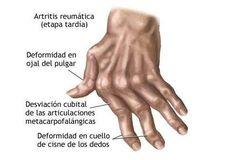 La palabra artritis significa literalmente inflamación, se sabe que existen actualmente más de 100 tipos de artritis y todos los tipos causan dolor y rigidez; La artritis no mira edad así que cualquier persona puede verse afectada por este mal, que es producido por el desgaste de los cartílagos. Entre sus síntomas comunes podemos mencionar ...